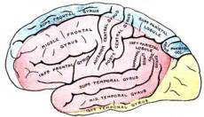 Middle cerebral artery syndrome - Wikipedia, the free